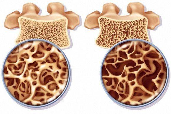 Miért fontos a K-vitamin pótlása?