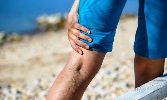 gyógynövények a lábak ízületeinek kezelésére